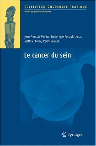 Le Cancer Du Sein (Oncologie Pratique) (French Edition)